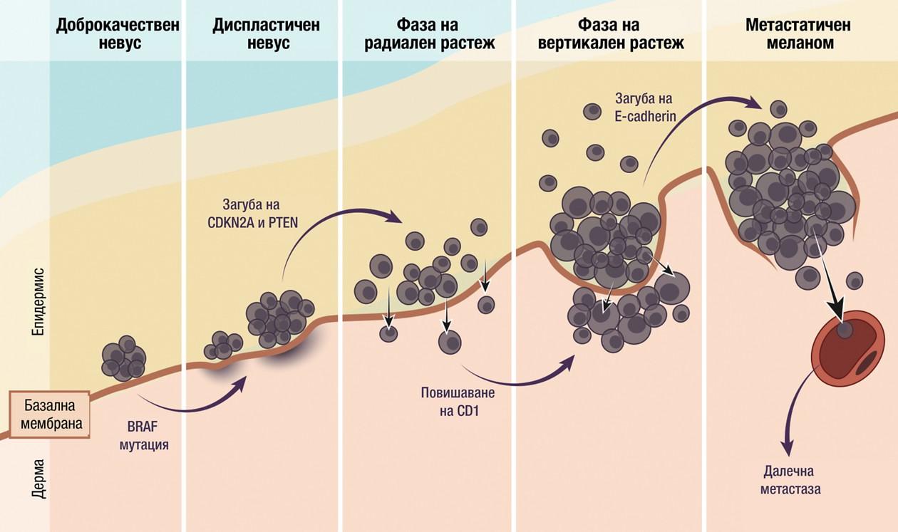 Патогенеза и молекулярни промени при меланом