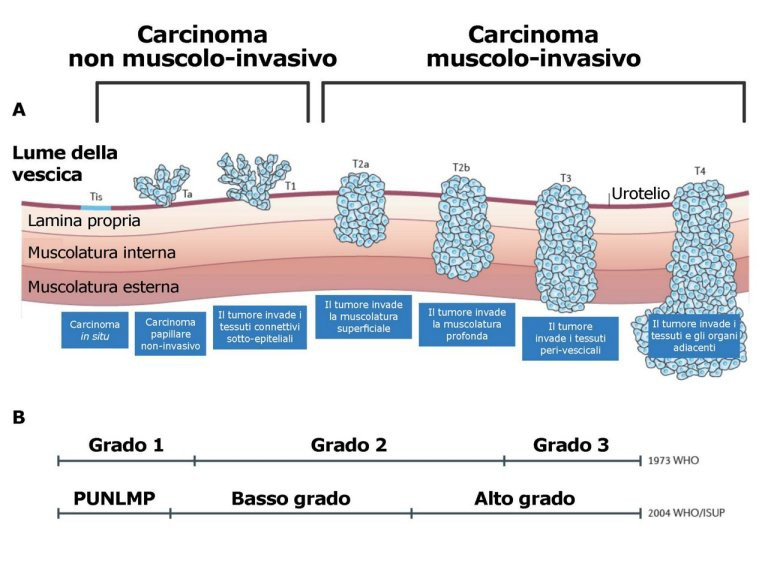 Papilloma vescicale uomo 2 cm, Pancreatic cancer xenograft models - Papilloma vescicale 2 cm